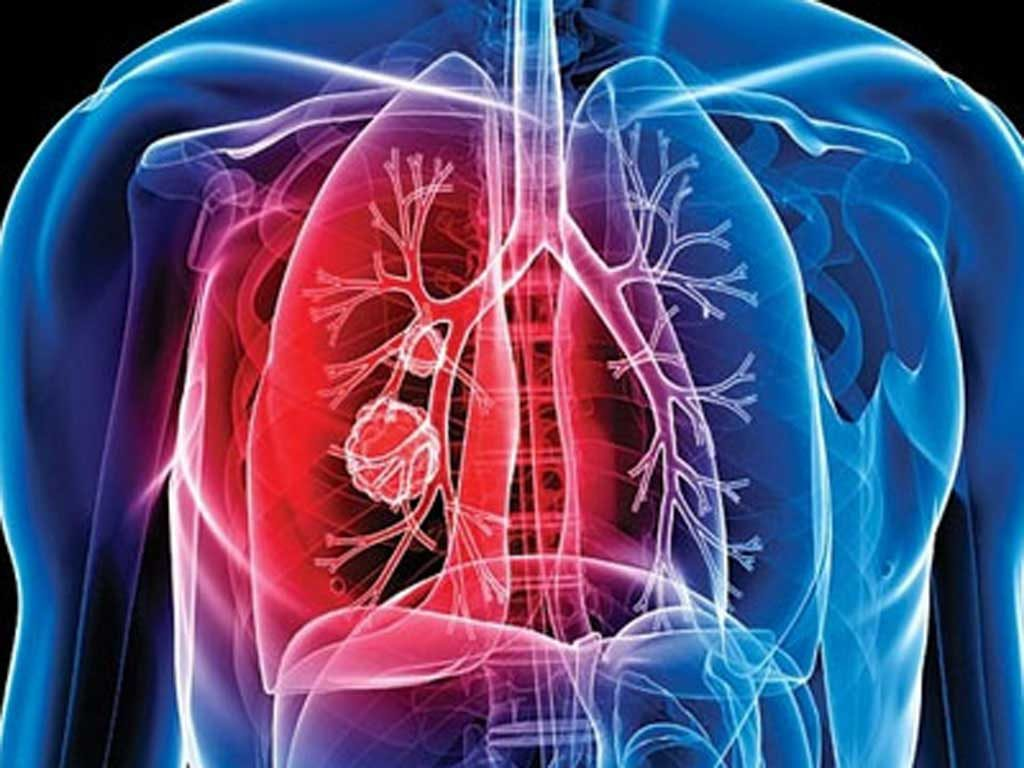 Туберкулоза и сребърна вода Армакс