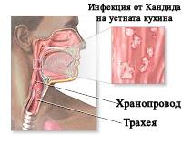 Гъбична инфекция с кандида на устата